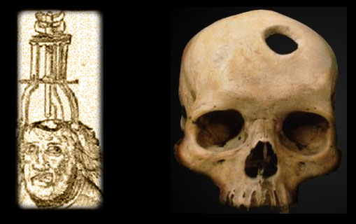 Ancient trepanation apparatus, and the result...